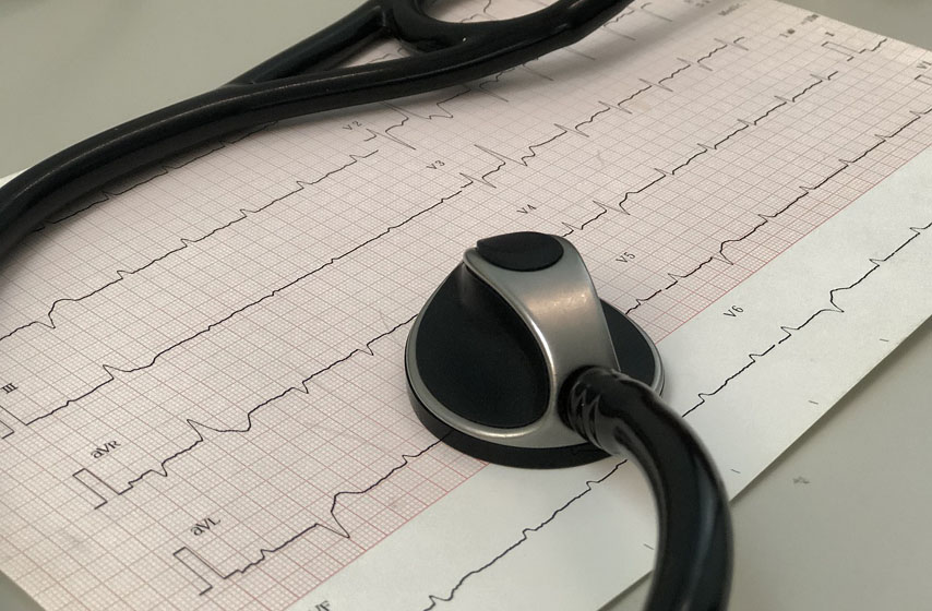 ekg, savetovalište za srčane bolesnike, zdravlje, najnovije vesti