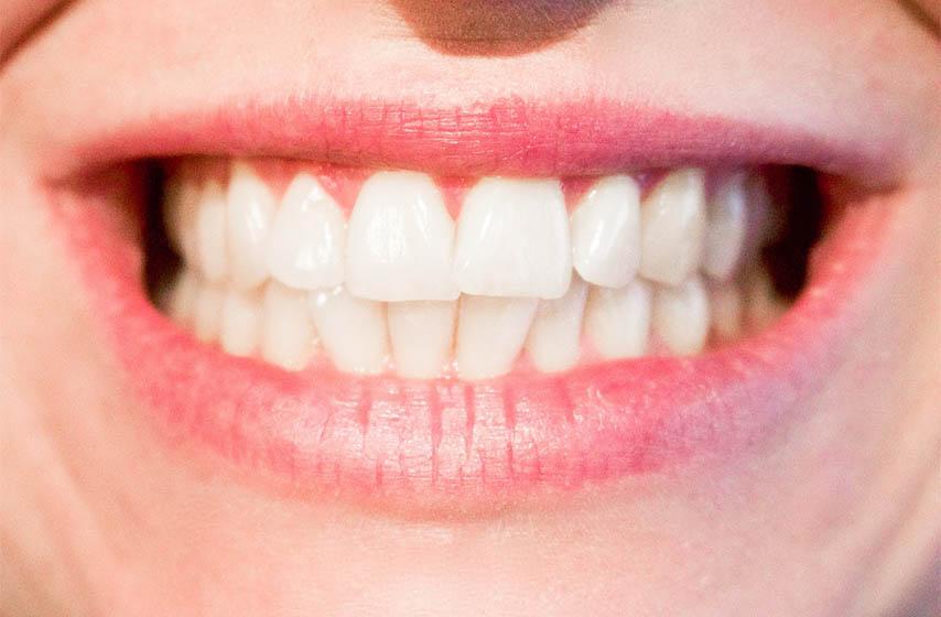 najstetnije pice za zube
